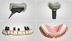 3shape-dental-1302