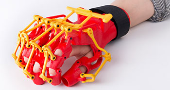 3D Printed Rehabilitation Orthosis Design 01-1608