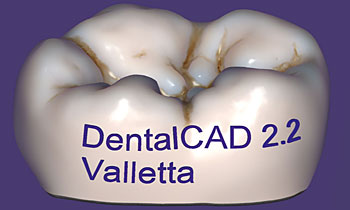 DentalCAD add text to any design-1815